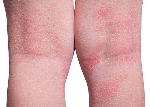 På røde kroppen knopper Røde punkter