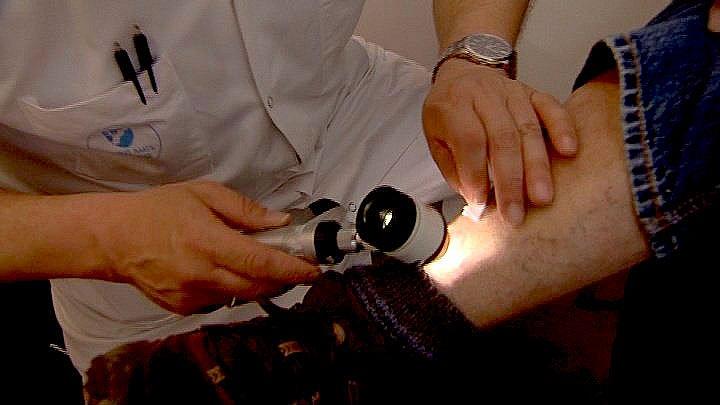 Fejl i måling af modermærker: Otte patienter fejlbehandlet